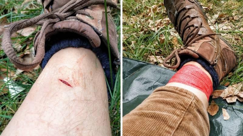 Unvorsichtigkeit und Leichtsinnigkeit sind keine guten Begleiter in der Wildnis – hier hackte ich mir selbst ins Bein mit meiner Axt
