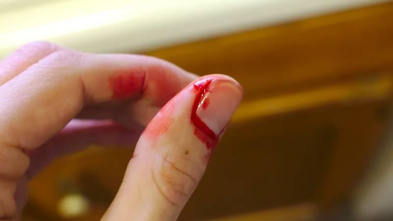 Oberflächliche Verletzungen sind nicht gefährlich auf den ersten Blick, aber eine Entzündung wünschst du dir nicht.
