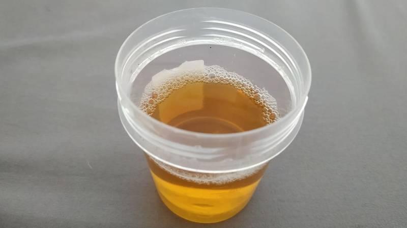 Urin trinken um zu Überleben - ist das ungefährlich?
